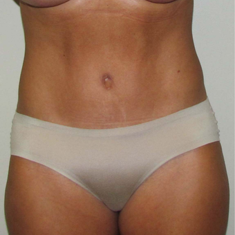 Tummy Tuck for This 45 Year Old Woman after 3384967