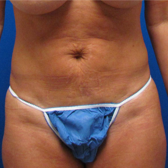 Tummy Tuck for This 45 Year Old Woman before 3384967