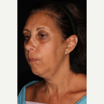 55-64 year old woman treated with Kybella before 3768534
