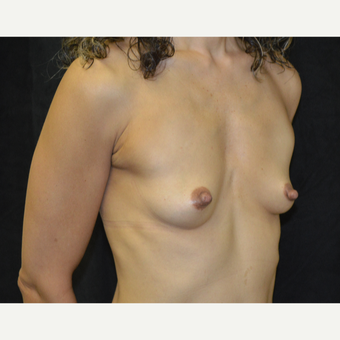 45-54 year old woman treated with Breast Augmentation before 3418133