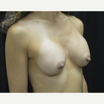 45-54 year old woman treated with Breast Augmentation after 3418133