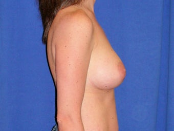 Breast Augmentation 1189546