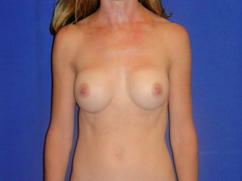 Breast Augmentation after 1189546