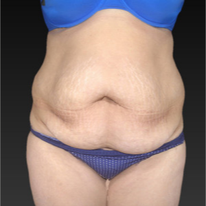 45-54 year old woman treated with Tummy Tuck before 3743631