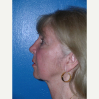 55-64 year old woman treated with Facelift and eyelid surgery before 3727165