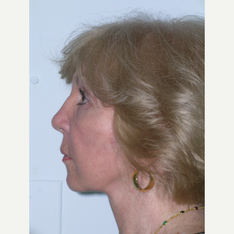 55-64 year old woman treated with Facelift and eyelid surgery after 3727165