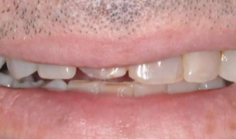 45-54 year old man treated with Porcelain Veneers before 3804889
