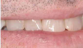 45-54 year old man treated with Porcelain Veneers after 3804889