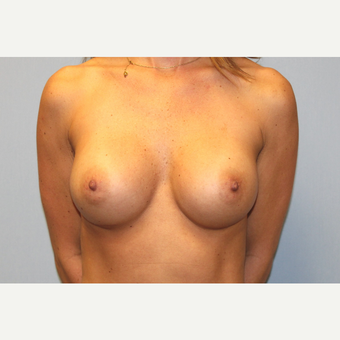 25-34 year old woman treated with Breast Augmentation after 3570137
