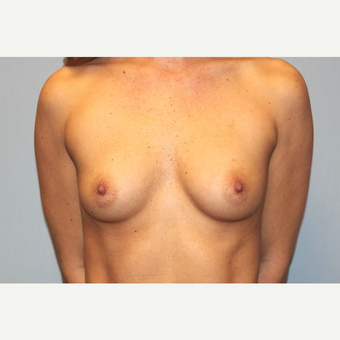 25-34 year old woman treated with Breast Augmentation before 3570137