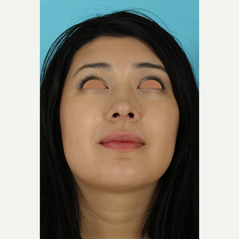 25-34 year old woman treated with Rhinoplasty after 3691305