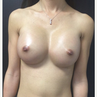 25-34 year old woman treated with Breast Augmentation after 3012172