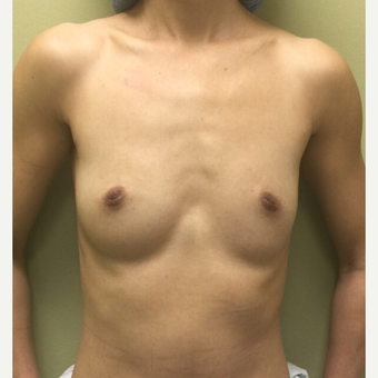 25-34 year old woman treated with Breast Augmentation before 3012172