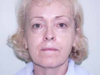 65-74 year old woman treated with Juvederm before 2073660