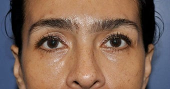 Lower lid blepharoplasty and Fat Transfer to lower lids and midface after 307123