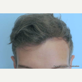Class III-V Hair Loss Treated with FUE Hair Transplant after 3566309