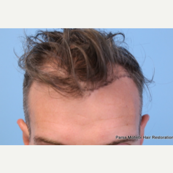 Class III-V Hair Loss Treated with FUE Hair Transplant before 3566309
