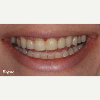 35-44 year old woman treated with Porcelain Veneers before 3578296