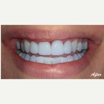 35-44 year old woman treated with Porcelain Veneers after 3578296