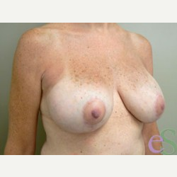 Breast Implant Revision after 3373478