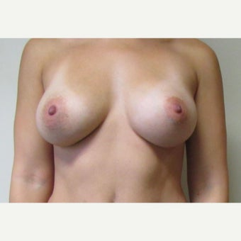 30 year old woman underwent Breast Augmentation with 380 cc saline implants after 2548696