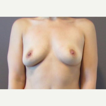 30 year old woman underwent Breast Augmentation with 380 cc saline implants before 2548696