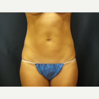 39 year old woman treated with SculpSure after 2767545