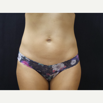 39 year old woman treated with SculpSure before 2767545