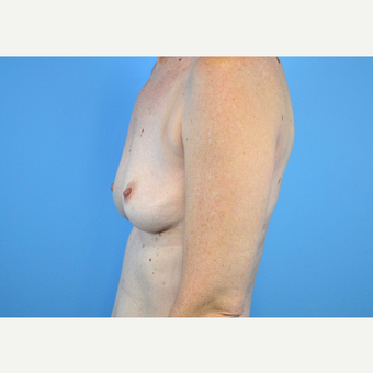 45-54 year old woman treated with Breast Implants before 3440061