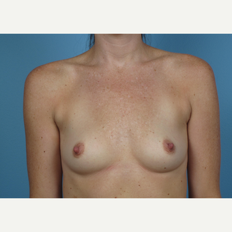 35-44 year old woman treated with Breast Augmentation before 3245170