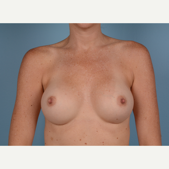 35-44 year old woman treated with Breast Augmentation after 3245170