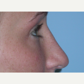 18-24 year old woman treated with Rhinoplasty after 3075851