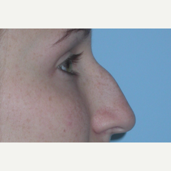 18-24 year old woman treated with Rhinoplasty before 3075851