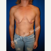 25-34 year old woman treated with Breast Lift with Implants before 3325769