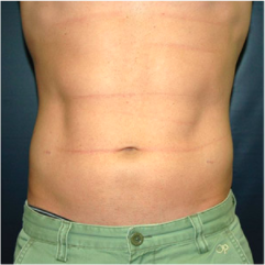 34 year old man treated with Liposuction after 3721101