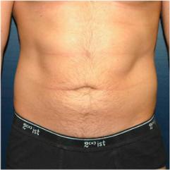 34 year old man treated with Liposuction before 3721101