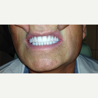 45-54 year old man treated with All-on-4 Dental Implants after 3320553
