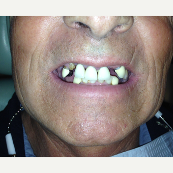 45-54 year old man treated with All-on-4 Dental Implants before 3320553