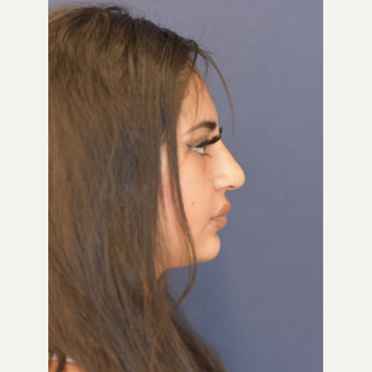 17 or under year old woman treated with Rhinoplasty after 3724858