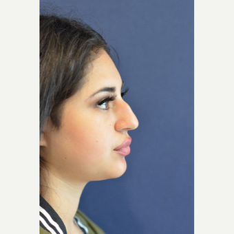 17 or under year old woman treated with Rhinoplasty before 3724858