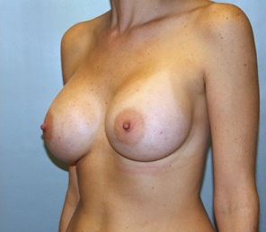 Breast Augmentation 926264