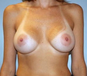 Breast Augmentation after 926264