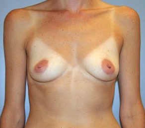 Breast Augmentation before 926264