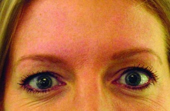 Brow lift with Botox