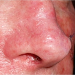 65-74 year old man treated with Pulsed Dye Laser for broken blood vessels on nose after 3183911