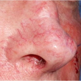 65-74 year old man treated with Pulsed Dye Laser for broken blood vessels on nose before 3183911