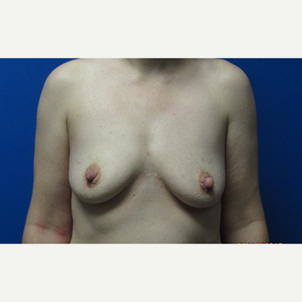 Breast augmentation 550cc ultra high profile breast implants. before 3370829
