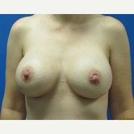 Breast augmentation 550cc ultra high profile breast implants. after 3370829