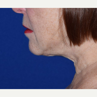 55-64 year old woman treated with Chin Liposuction after 3641441