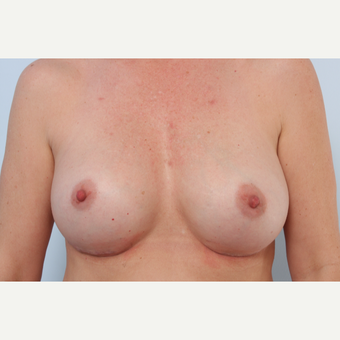 Breast Implant Exchange after 2966178